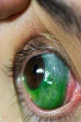 Tatuaż gałki ocznej kolor zielony