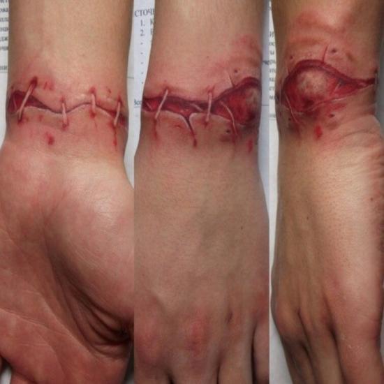 Tatuaż szycie chirurgiczne